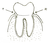 Shows gumlines next to tooth where bacteria are found